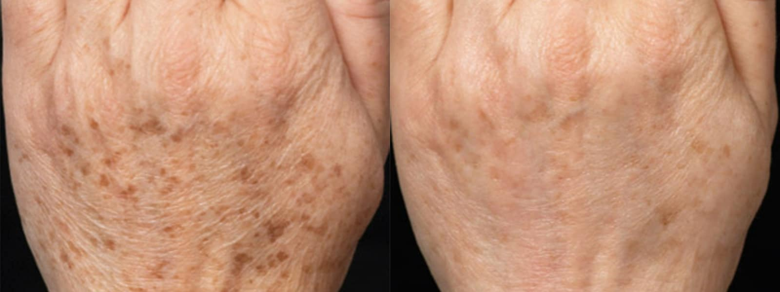 Age Spot Removal Columbia SC