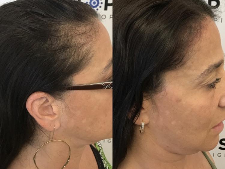 Scalp Micropigmentation for women in Columbia SC