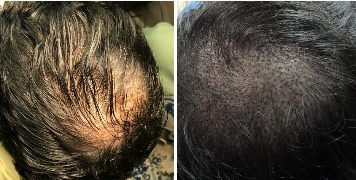 Scalp Micropigmentation hair loss treatment before and after in Columbia SC