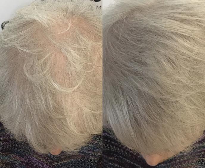 Scalp Micropigmentation treatments in Columbia-SC