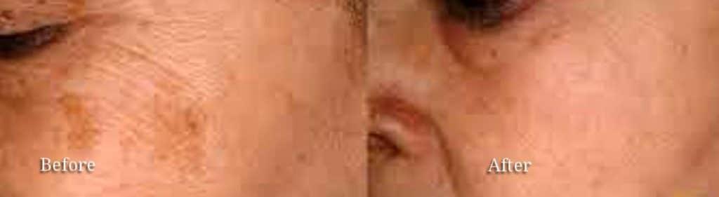 facial vessel correction columbia sc
