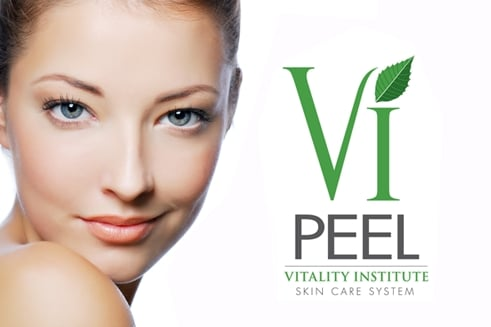 vi peel in columbia sc