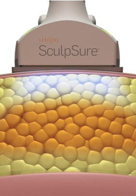 How SculpSure Works B