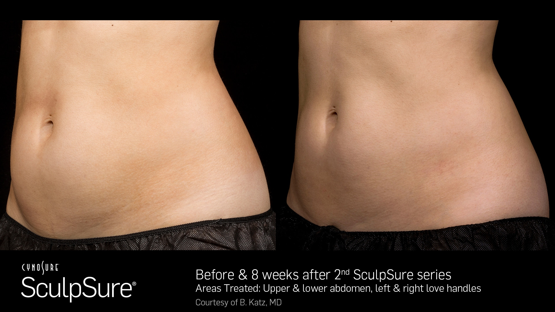 SculpSure Female Tummy
