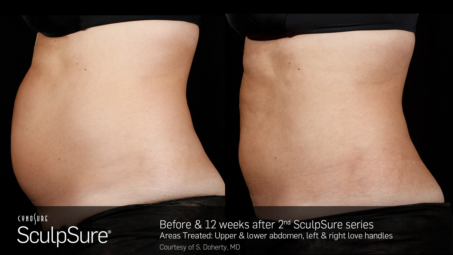 SculpSure Weight Loss Results
