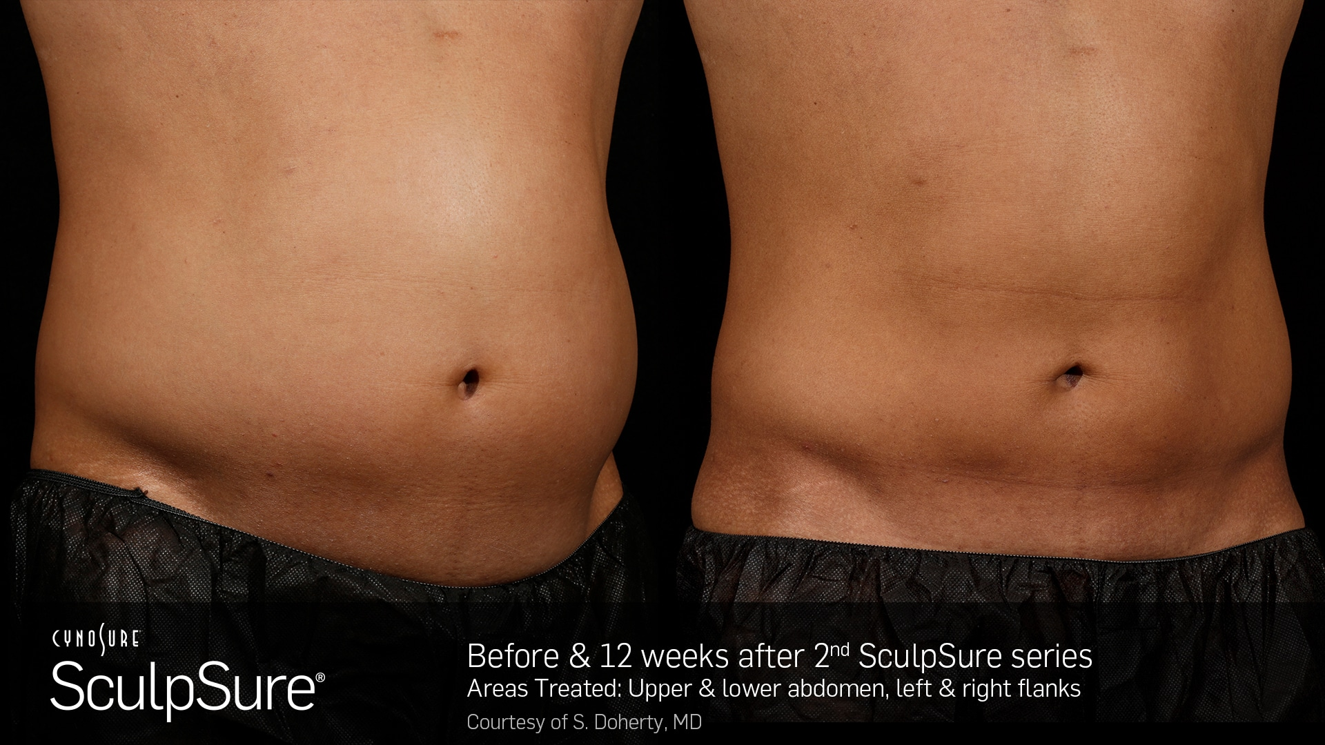 SculpSure Male Tummy