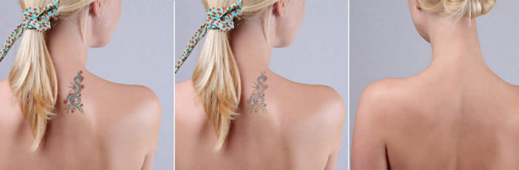 laser tattoo removal columbia
