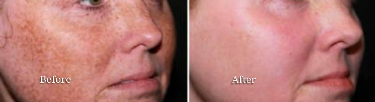 pigmentation-correction-before-and-after
