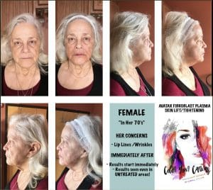 FIBROBLAST BEFORE AND AFTER RESULTS 9