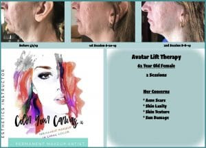 FIBROBLAST BEFORE AND AFTER RESULTS 8