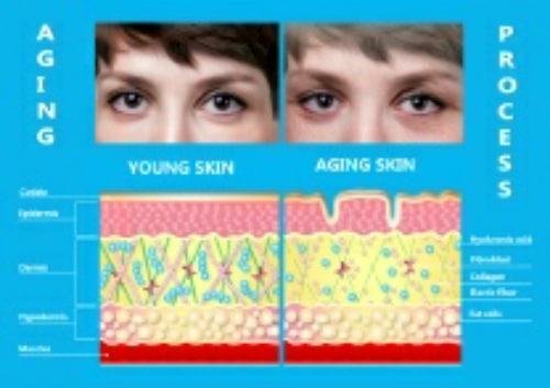 new skin vs old skin