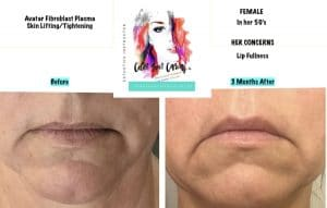FIBROBLAST BEFORE AND AFTER RESULTS 6
