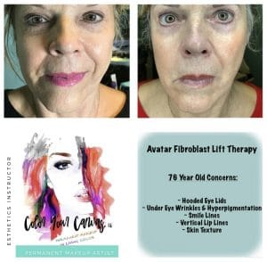 FIBROBLAST BEFORE AND AFTER RESULTS 4