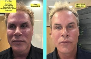 FIBROBLAST BEFORE AND AFTER RESULTS 3