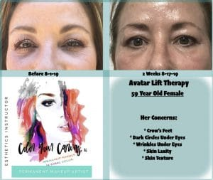 FIBROBLAST BEFORE AND AFTER RESULTS 2