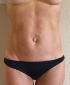 renuvion-abdomen-skin-tightening-4-weeks-post-op