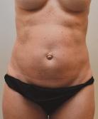 renuvion-abdomen-skin-tightening-before