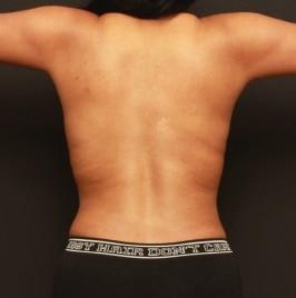 renuvion-back-skin-tightening-2-and-half-months-post-op