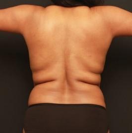 renuvion-back-skin-tightening-before