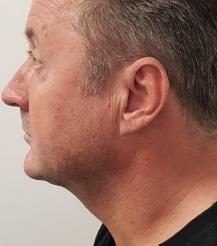 renuvion-chin-skin-tightening-after