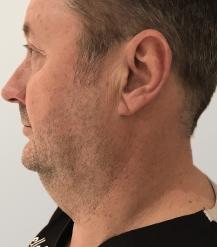 renuvion-chin-skin-tightening-before