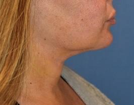 renuvion-neck-skin-tightening-afterjpg