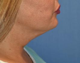 renuvion-neck-skin-tightening-beforejpg
