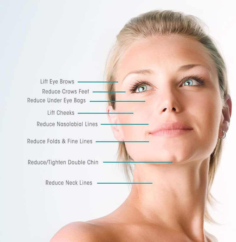 pdo-thread-lift-is the best at tighening skin
